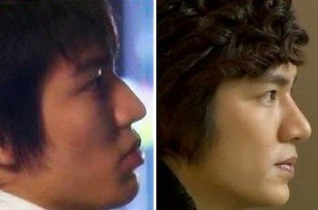 Lee-Min-Ho-Plastic-Surgery-3