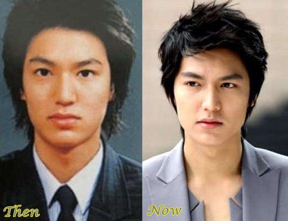 Lee-Min-Ho-plastic-surgery