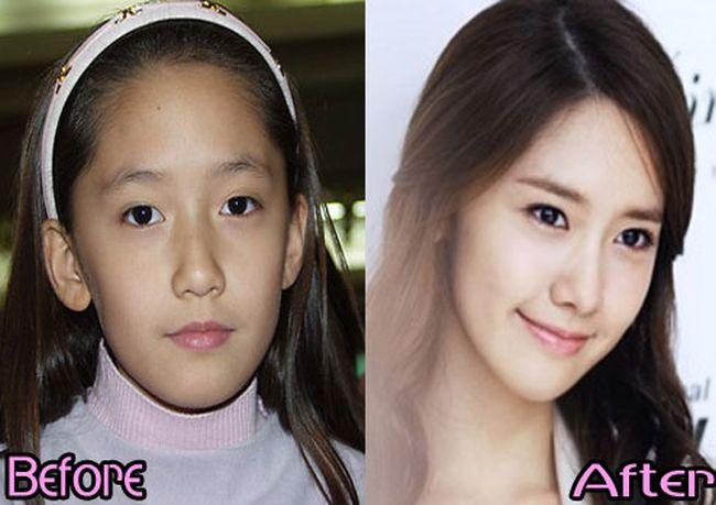 SNSD-Yoona-before-and-after-plastic-surgery-pictures