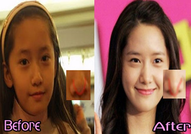 Yoona-plastic-surgery-Before-and-After