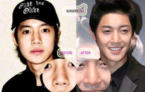 Kim-Hyun-Joong-Nose-Job